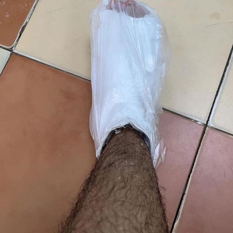 cái chân đàu của anh chàng